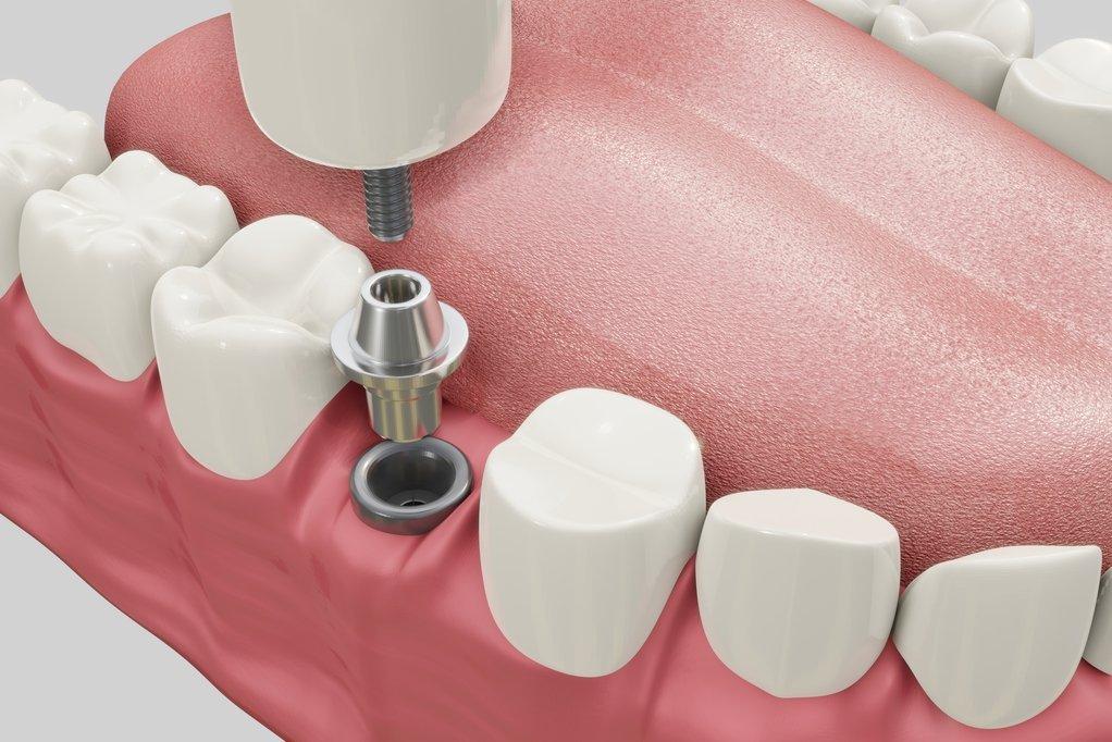 Dental implants | 6 major benefits of dental implants shared by dentist in westmont