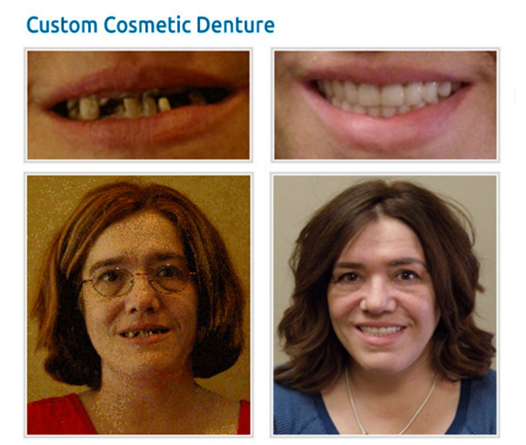 Before and after | smile gallery