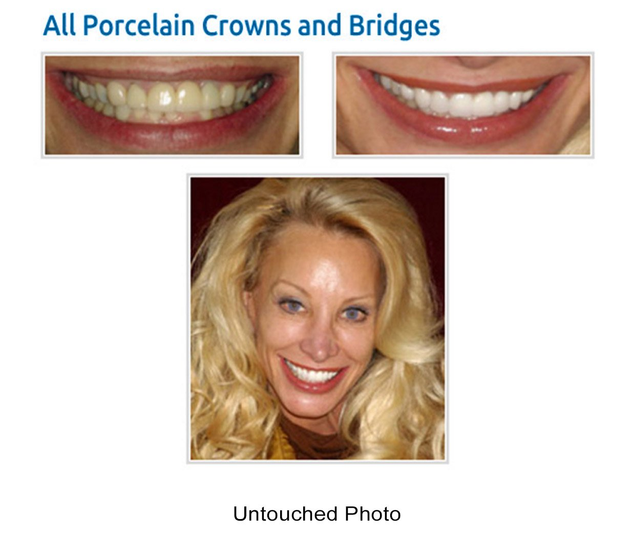 Dental crowns and bridges in westmont il