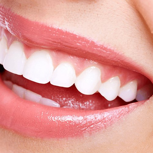 Cosmetic dentist in downers grove