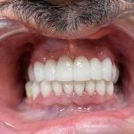Smile makeover | sandu before and after smile makeover