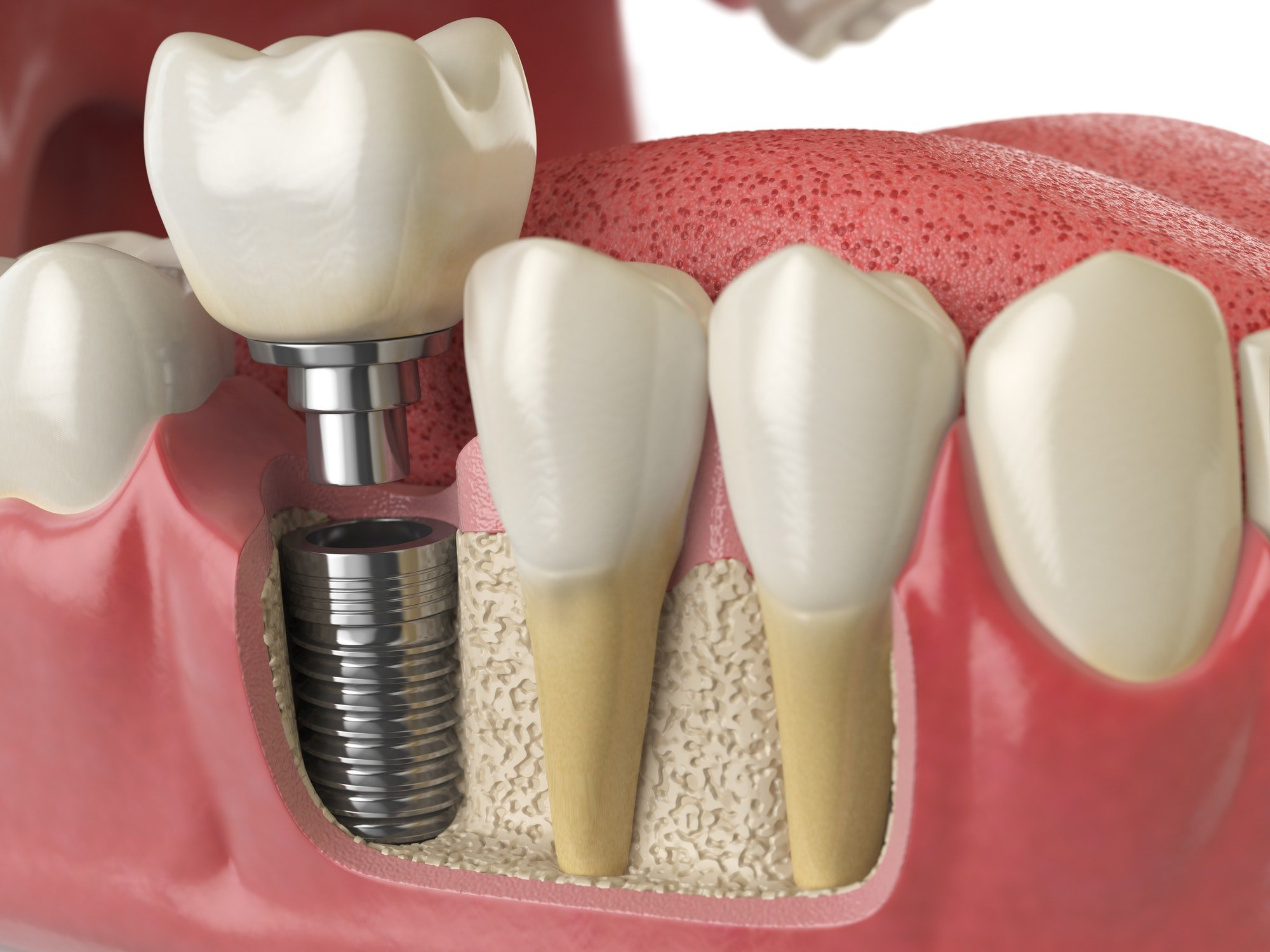 Dental implants in westmont il