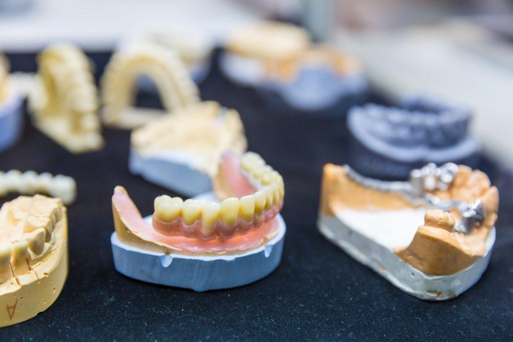 dental implants vs dentures for 40 plus seniors