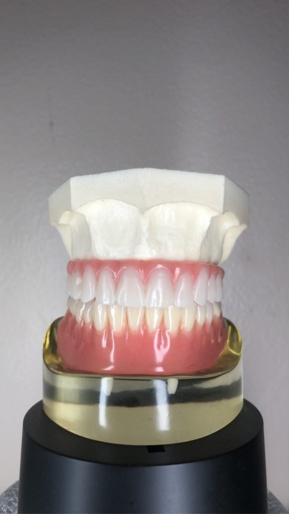  lower overdenture and all on four upper denture - images