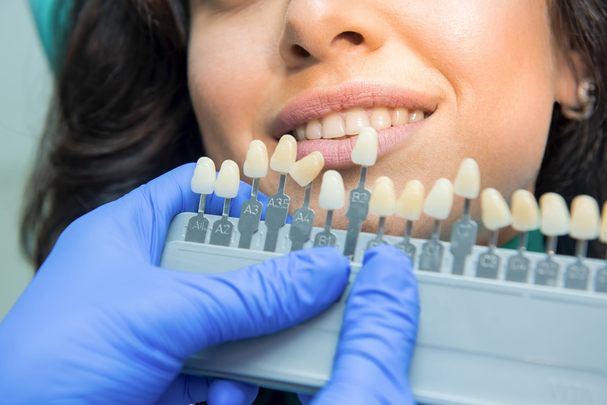 get professional teeth whitening near you