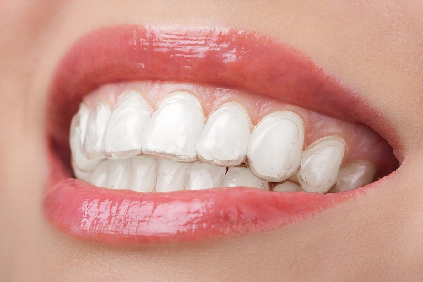 Teeth whitening vs teeth bleaching