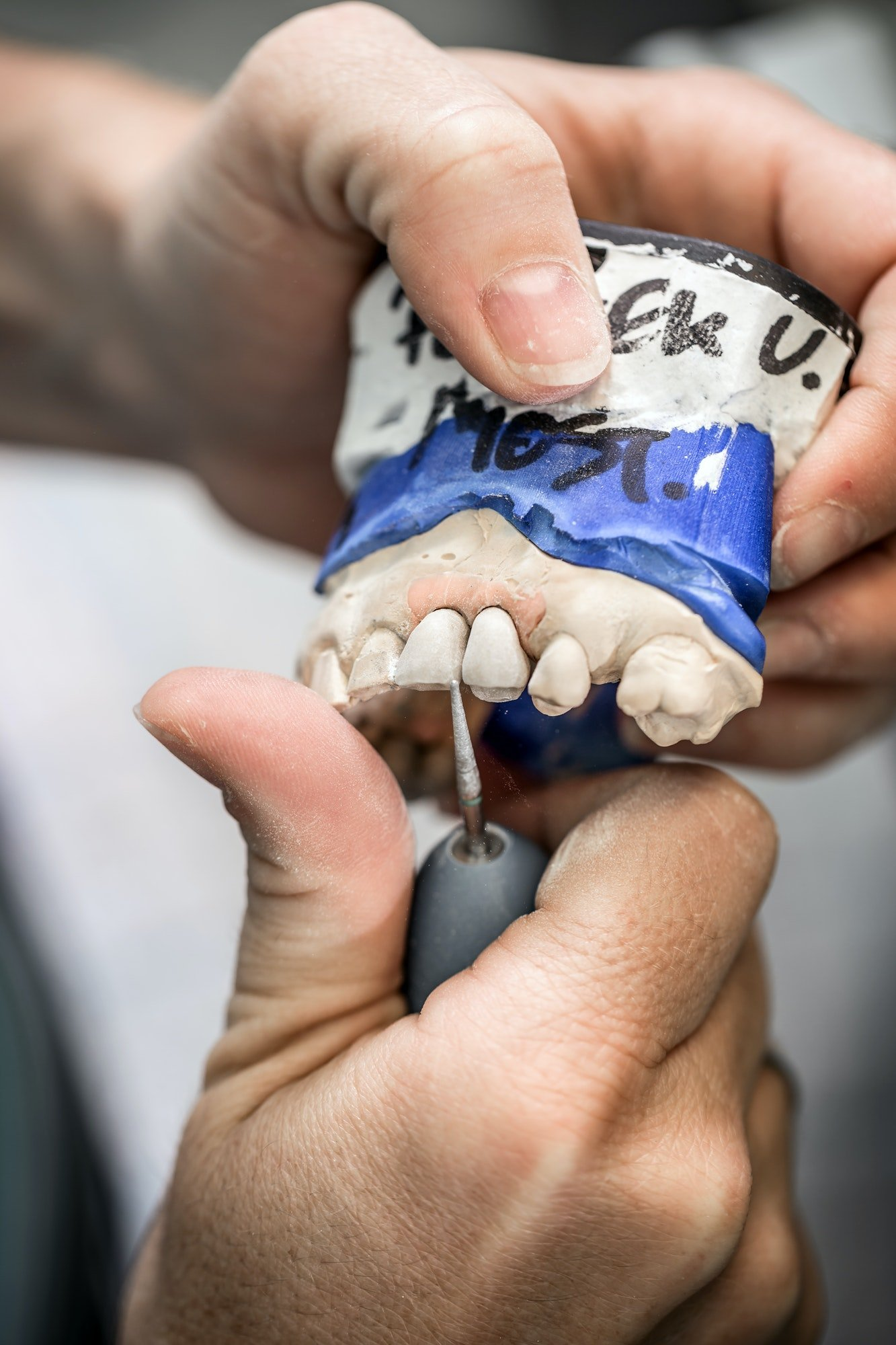 Porcelain veneers in westmont il