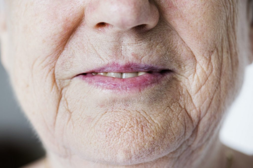 Sure signs adults aged 40 need dental implants